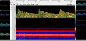 Routinediagnostik mit 9 Spektrenfenstern
