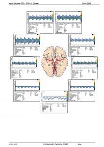 Standard report transcranial (extract)
